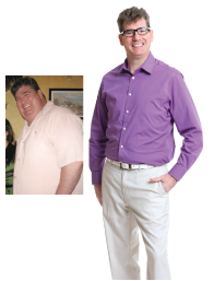 Weight Loss Surgery - Peter