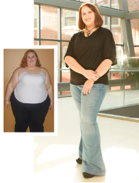Weight Loss Surgery - Rachel